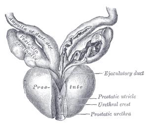 Prostatarak